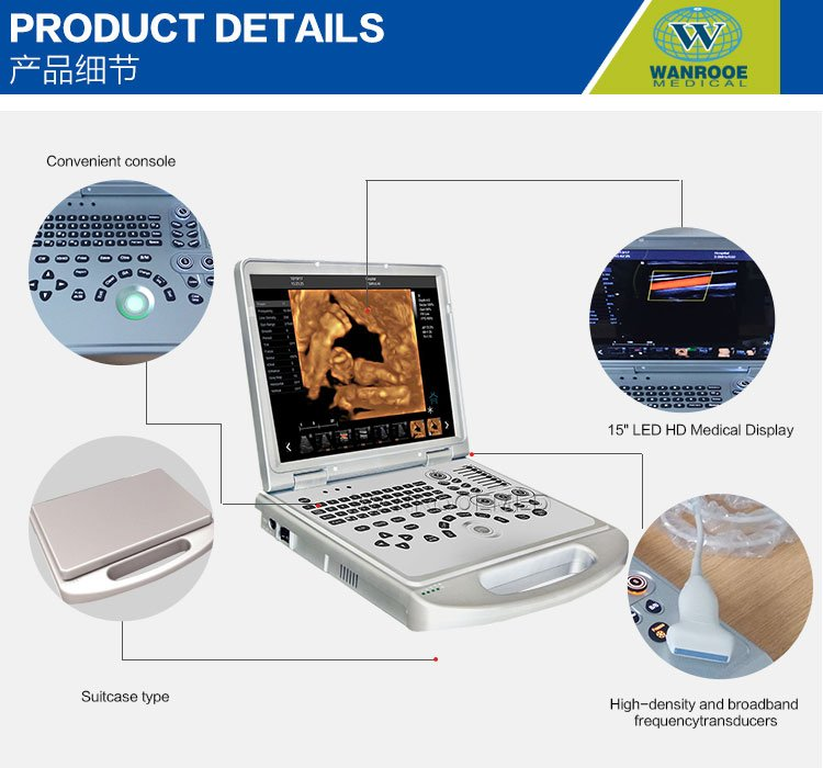 USC60 Plus 4D Portable Ultrasonic Diagnostic Ultrasound Scanner with Convex Probe