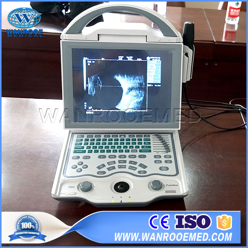 Ophthalmic Ultrasound Machine, Eye Ultrasound Machine, Notebook Eye Ultrasound , A Scan Ophthalmic Ultrasound, B Scan Ophthalmic Ultrasound