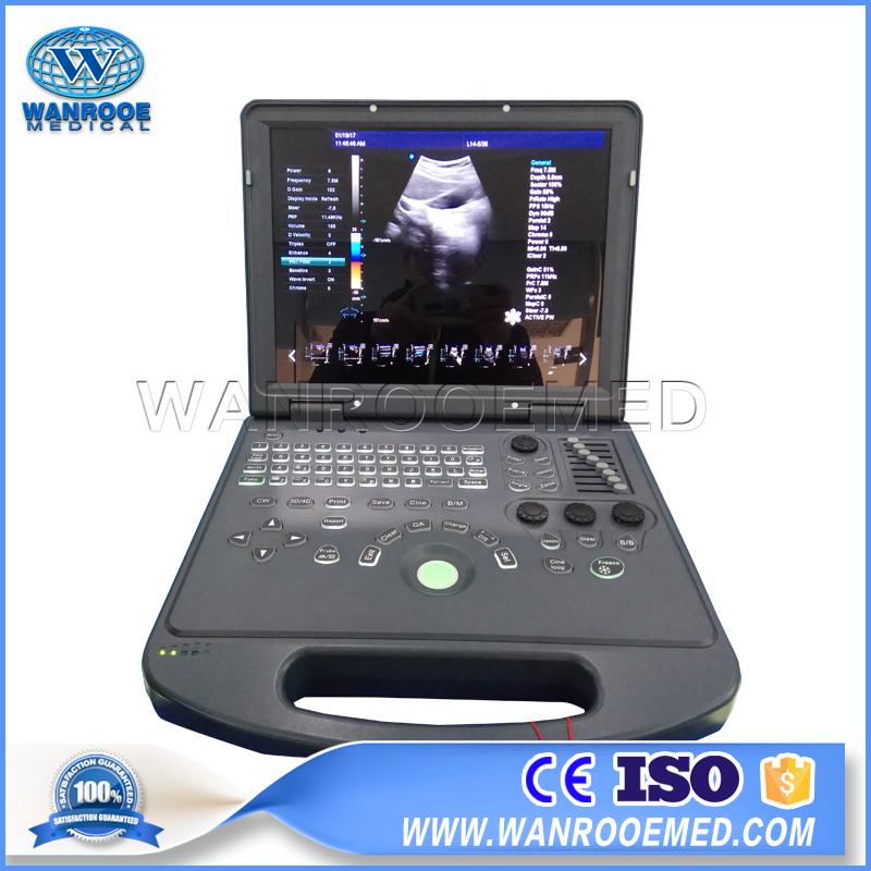 Ultrasound Scanner, Laptop Ultrasound Scanner, Portable Ultrasound Machine, Fetal Doppler Ultrasound, Color Doppler Ultrasound Machine Price