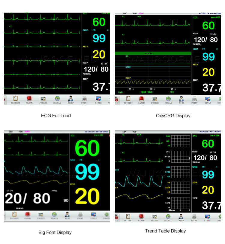 Patient Monitor, Medical Patient Monitor, Multi Parameter Patient Monitor, Patient Monitoring System, Portable Patient Monitor